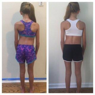 meisje scoliose voor en na achterkant