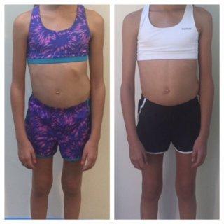 Meisje scoliose voor en na voorkant